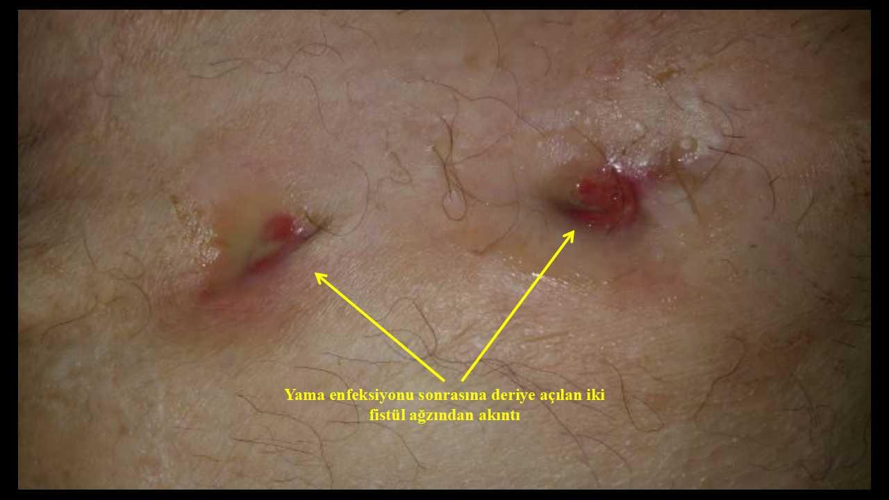 Ameliyat Yerinin İltihap Kapması Olasılığı