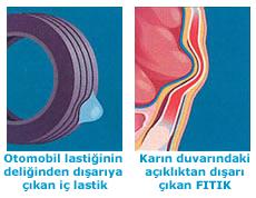 fitik_nedir
