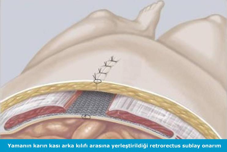 kesi_fitiği_ameliyati3