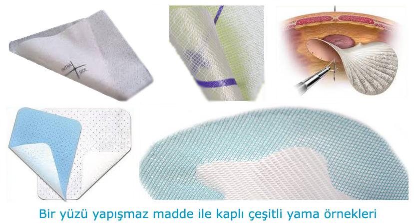 yama_tipleri4